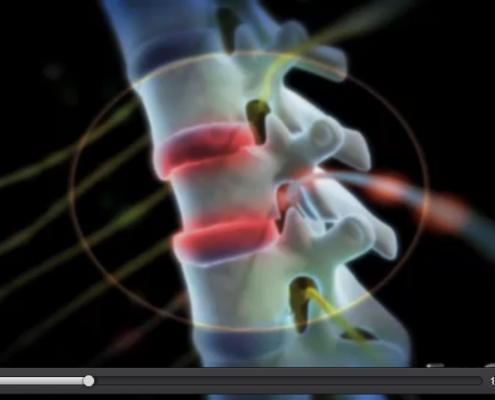 Cosa cura la chiropratica